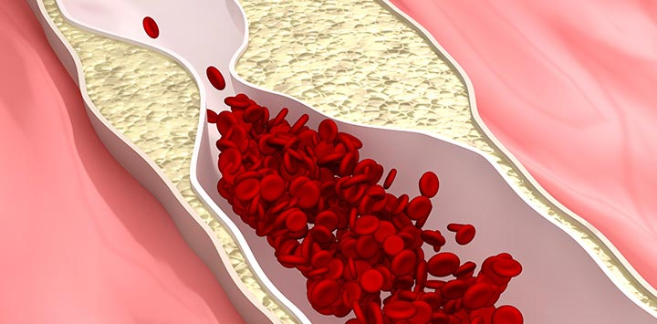 Power to prevent cardiovascular disease