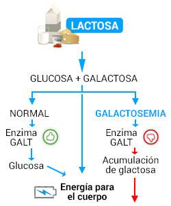 galactosemia essay