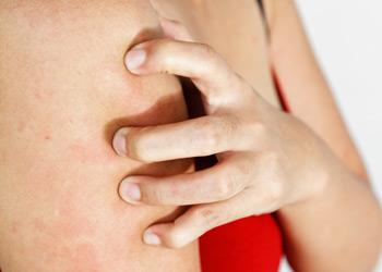 Alergia cutánea
