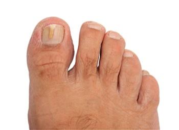 Curar el hongo en los pies entre los dedos