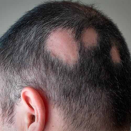 Alopecia cicatrizal
