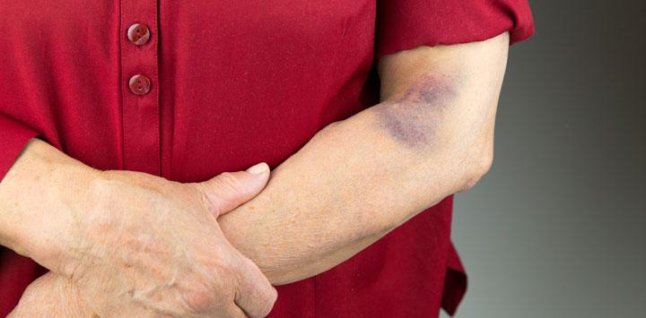 Purpura plaquetas bajasi