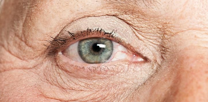 El ajuste de las cejas y los párpados por los hilos de la foto antes y después