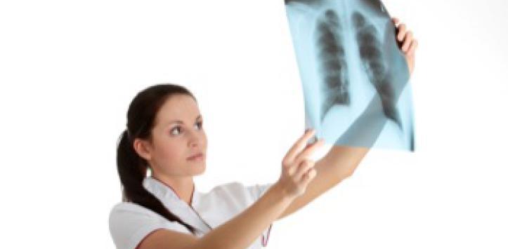 Qué es un edema pulmonar