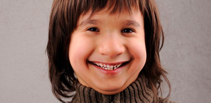 Síndrome de Williams Causas, síntomas y tratamiento