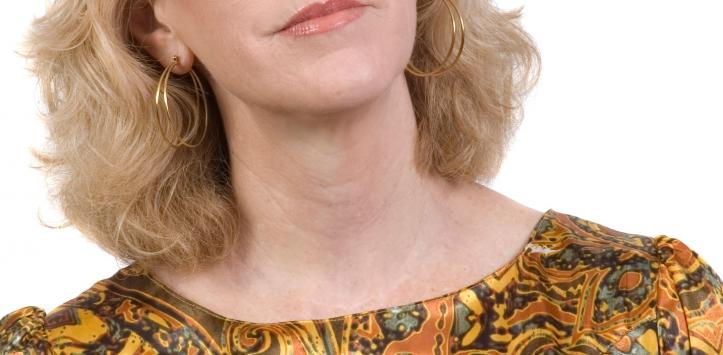 Mujer con hipertiroidismo