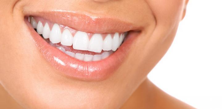 blancorexia obsesión por unos dientes blancos