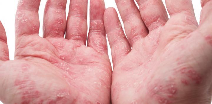 Manos con signos de artritis psoriásica