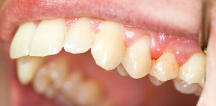 La periodontitis, factor de riesgo cardiovascular