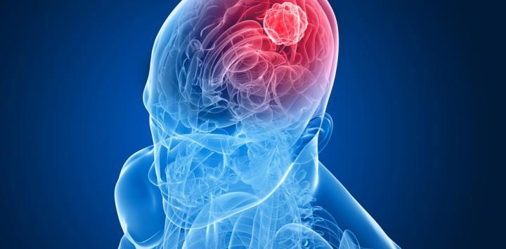 Resultado de imagen de meduloblastomas
