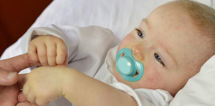 Bebé con eczemas