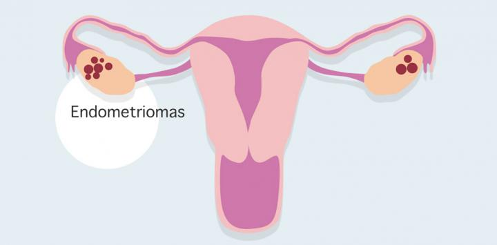 Endometriomas