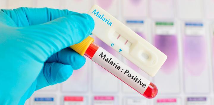 La malaria también puede deteriorar los huesos del paciente