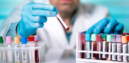Una nueva terapia podría frenar la expansión del VIH