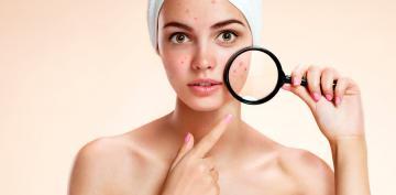 Chica jóven sufre acné