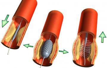 Arteriosclerosis Causas, síntomas y tratamiento