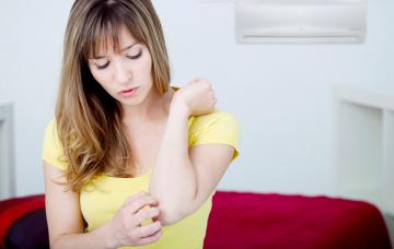Mujer con alergia al frio