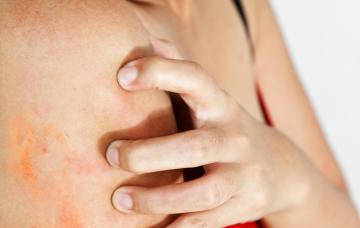 Mujer con una erupción alérgica en el brazo