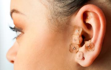 Mujer con microesferas magnéticas en la oreja