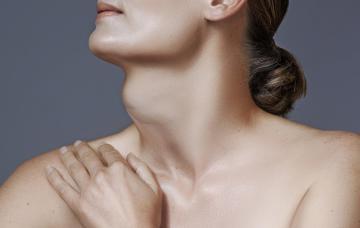 Mujer con bocio
