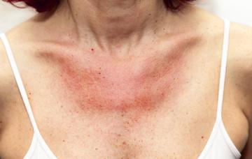 Alergia al sol Causas, síntomas y tratamiento