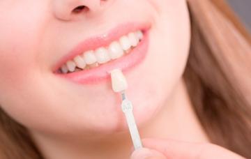 Carillas dentales, una sonrisa 'de cine' es posible