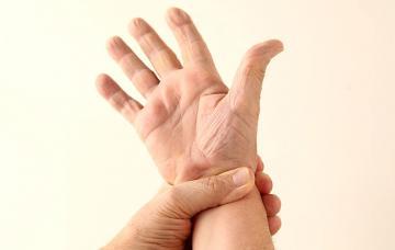 Mano con esclerodermia
