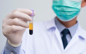 Doctor sostiene un tubo de plasma enriquecido con factores de crecimiento