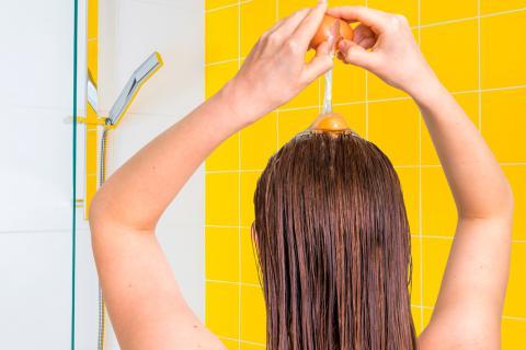 Si pasa la alopecia por herencia