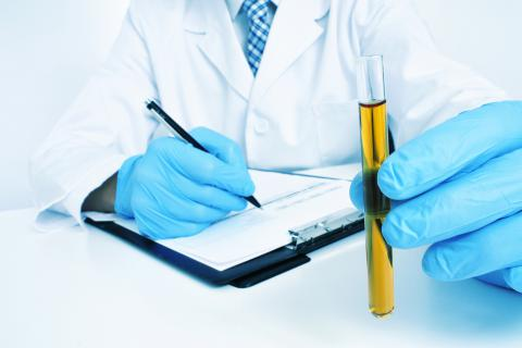 preparación para un análisis de orina pruebas médicas