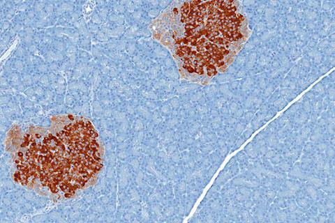 Tumores endocrinos de páncreas, qué son y síntomas