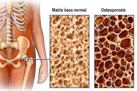 Resultado de imagen para imagenes de osteoporosis