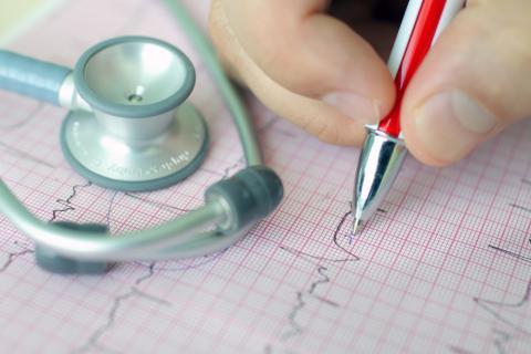 Diagnóstico de una arritmia