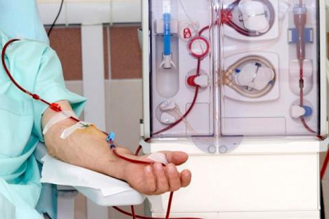 Diálisis para el tratamiento de la insuficiencia renal crónica