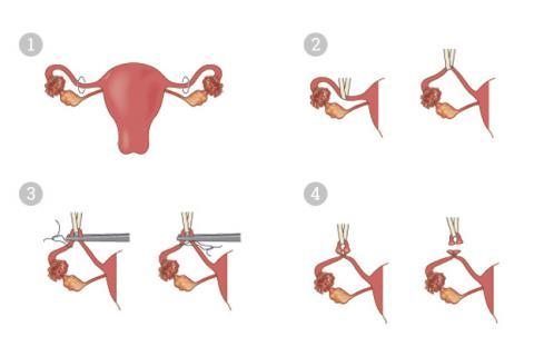 Tipos de cirugía en la ligadura de trompas