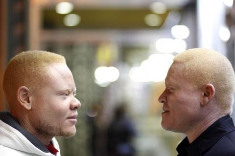 Signos y síntomas del albinismo