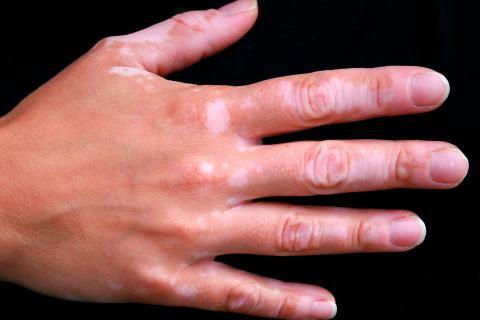 Síntomas y tipos de vitíligo
