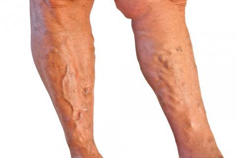 La agudización a la trombosis de las venas profundas de las extremidades inferiores