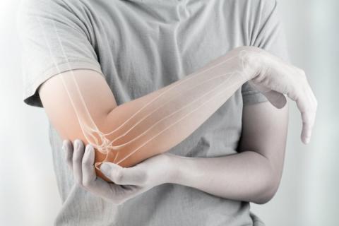 Sintomas De La Artritis Reumatoide Salud Al Dia