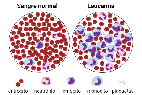 Resultado de imagen de leucemia