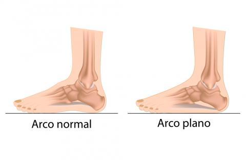 Principales tipos de deformidades de los pies en los niños