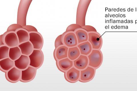 Tipos de edema pulmonar