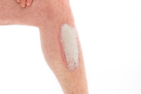 Atopichesky la dermatitis de la fomentación con la manzanilla