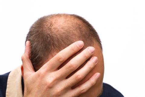 De la vitamina en para los cabellos en las ampollas