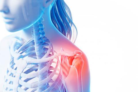 Diagnóstico de la bursitis - Ejercicio y deporte