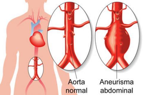 Causas de aneurisma - Salud al día