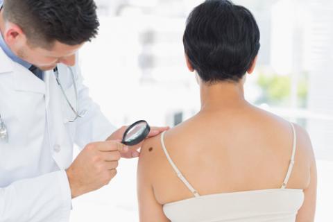 Diagnóstico de un melanoma