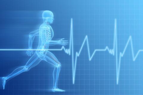 Complicaciones de un infarto de miocardio
