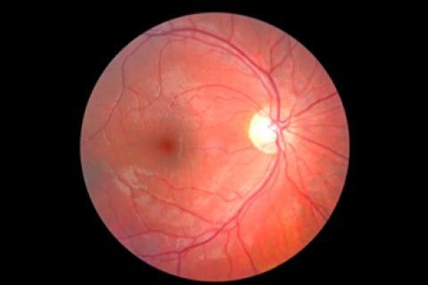 Resultados del examen de fondo de ojo