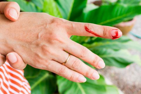 Síntomas de la hemofilia